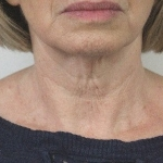 After-Skinboosters-Neck