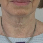 Before-Skinboosters-Neck