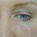 after-eye-bag-fillers