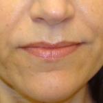 after-nasolabial-folds