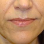 before-nasolabial-folds