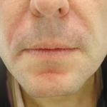 nasiolabial-folds-with-dermal-filler