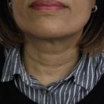 before-profhilo-dermastamp