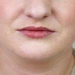 After-lips-filler