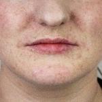 Before-lips-filler