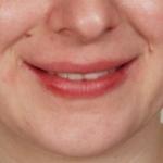 after-lip-filler