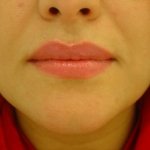 after-lip-fillers