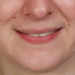 before-lip-filler