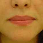 before-lip-fillers