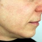 After-Hyperpigmentation-MeLine
