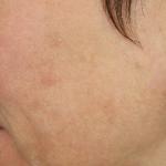 After-MeLine-Pigmentation-Treatment