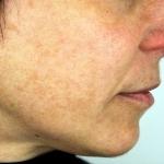 Before-Hyperpigmentation-MeLine