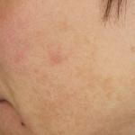 Before-MeLine-Pigmentation-Treatment