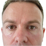 male-skin-treatment-after