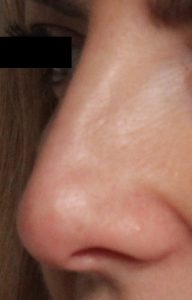 After_nose reshaping