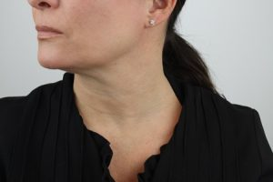 neck treatment after
