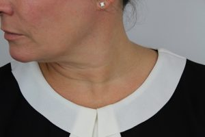 neck treatment before