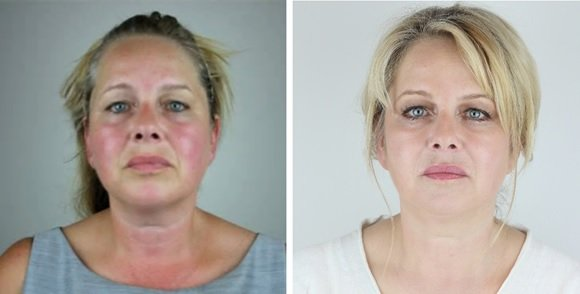 before and after exquisite facial ipl