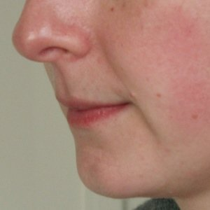 before lip enhancement