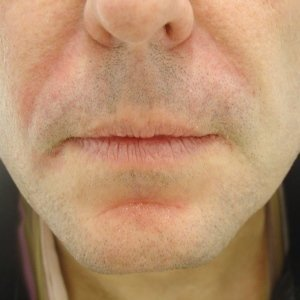 nasiolabial folds with dermal filler