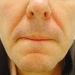 nasolabial folds without filler
