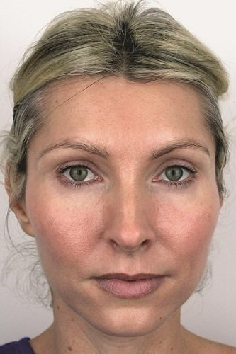 After Azzalure Dermal Fillers & Obagi