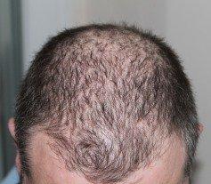 prp for alopecia