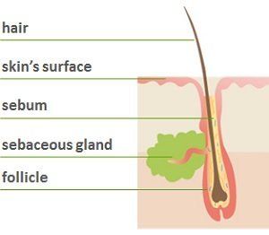 acne diagram acnelan