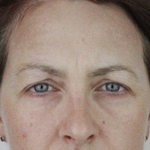 before-pdo-eyebrow-lift-hooded-eyes