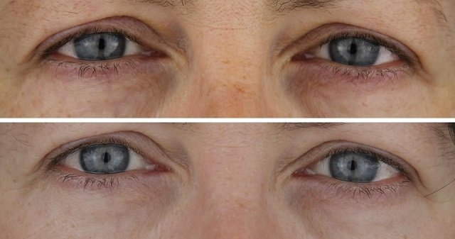 mesotherapy dark circles sheerluxe