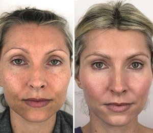 Cosmetic Treatment Results Revealed Clinicbe London