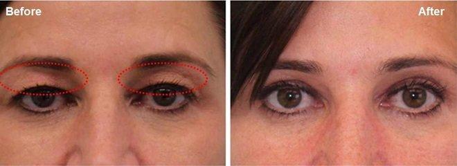 plasma bt eye rejuvenation