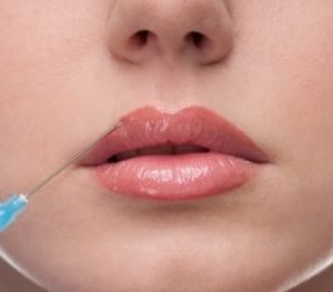 'Baby Lip Fillers' for Subtle Results | Clinicbe London