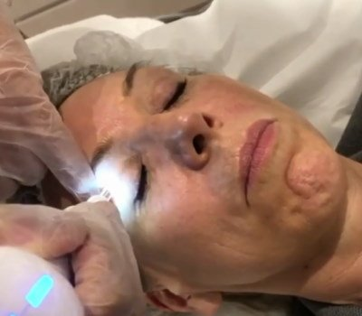 Non-Surgical Blepharoplasty Demo Plasma BT | Clinicbe London